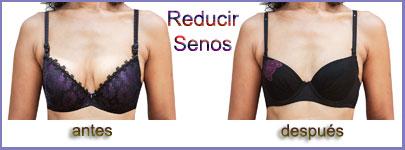Reduccion-de-senos-400