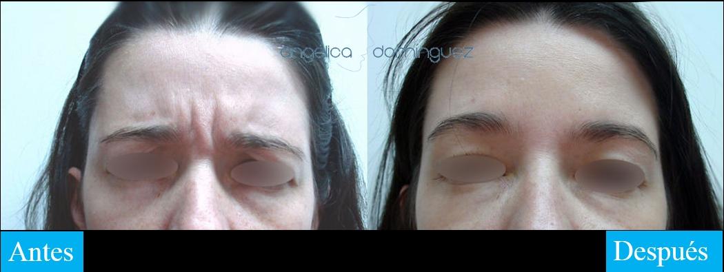 caso 1 de botox antes y despues en bogota