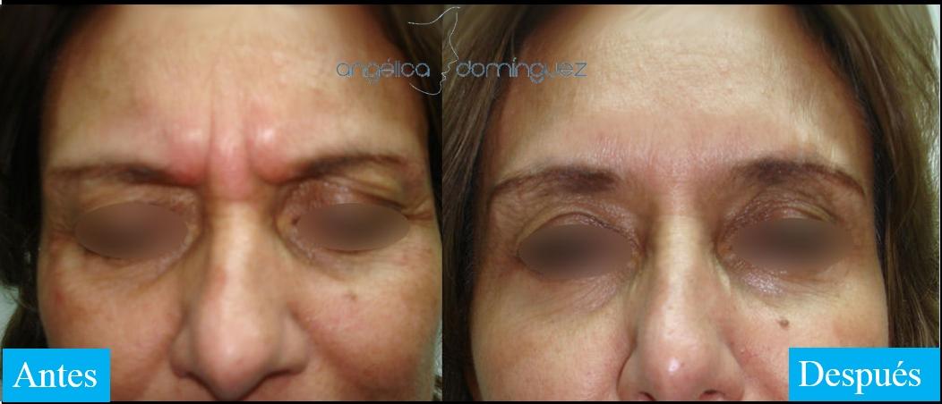 caso 2 de botox en bogota antes y despues
