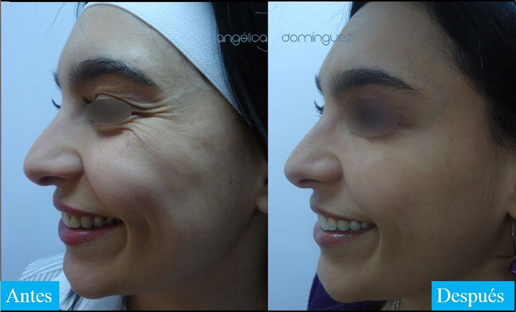 caso 3 de botox antes y despues