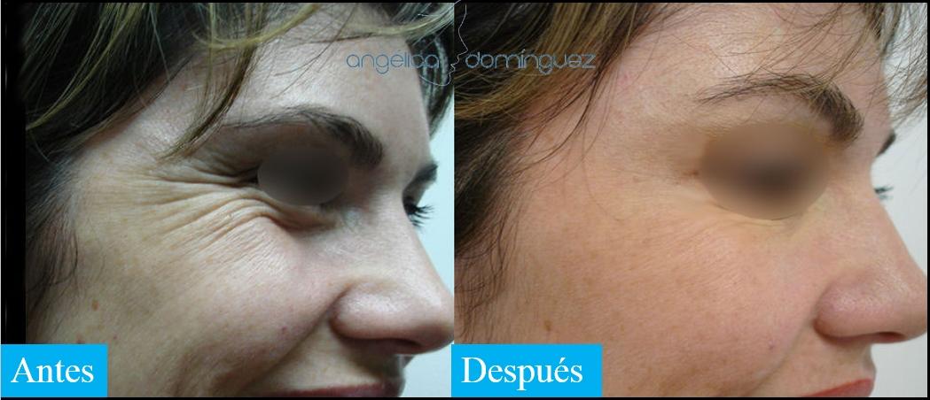caso 4 de botox en bogota antes y despues