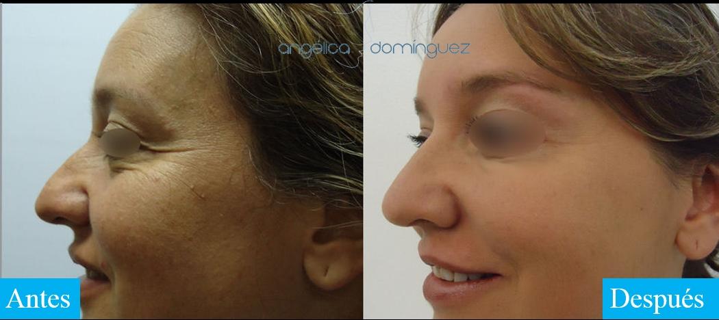 caso 6 de botox en bogota antes y despues