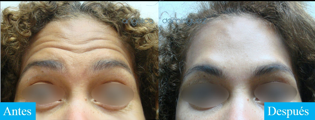 caso 7 de botox antes y despues