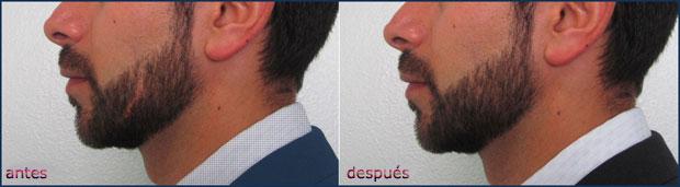 implante-barba-620