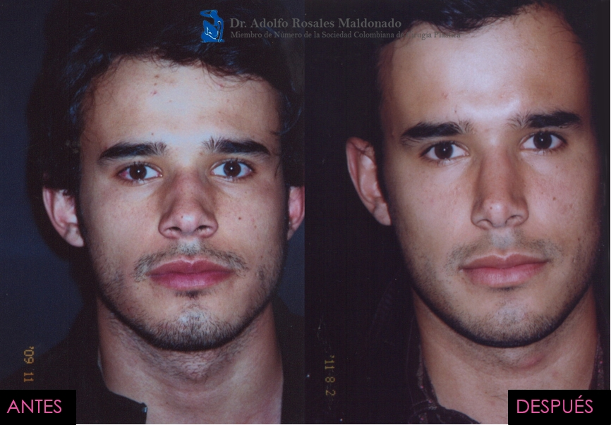 rinoplastia para nariz ancha