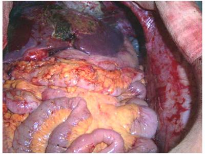 carcinomatosis-peritoneal-4