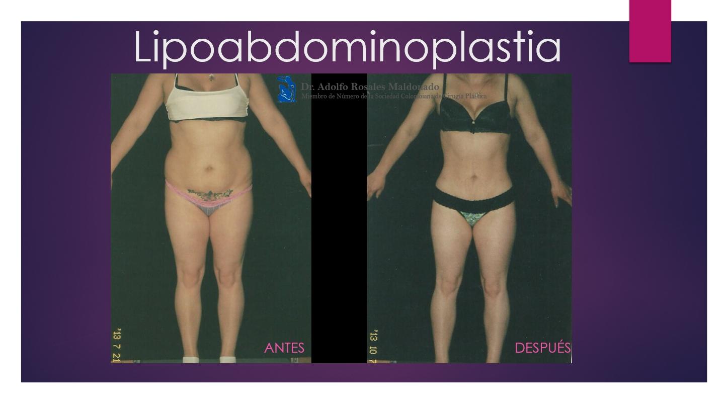 caso frontal de una lipo abdominoplastia