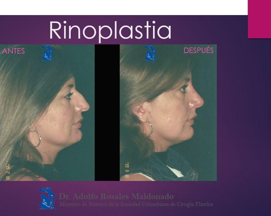 caso de una rinoplastia en bogota antes y despues