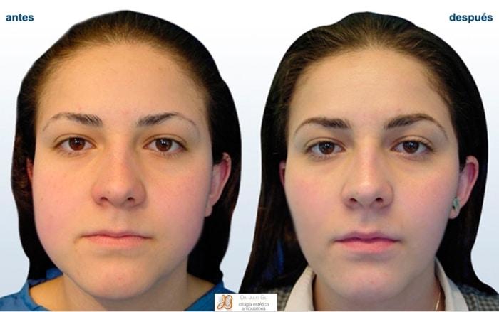 intervencion para adelgazar la cara