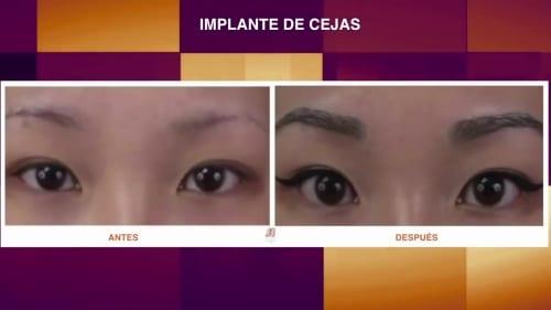 caso en Bogotá de implante de cejas en mujer