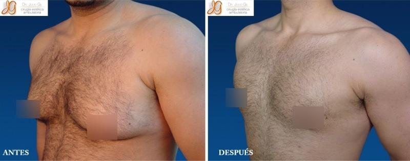 cirugía para eliminar los senos masculinos