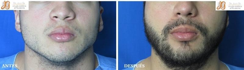 foto de injerto de barba
