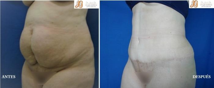 abdominoplastia antes y despues