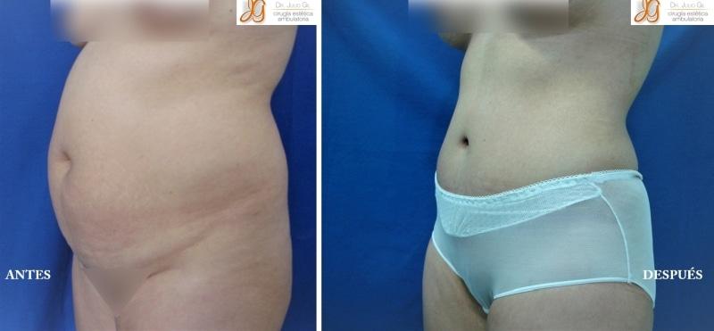mujer antes y despues de cirugia de abdomen
