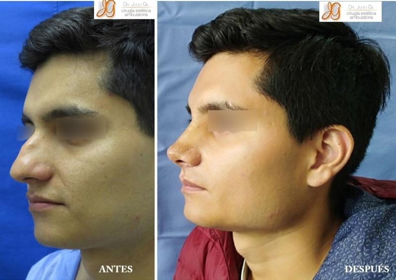 cirugia de nariz en joven