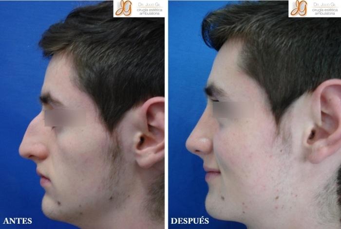 foto de cirugia de nariz