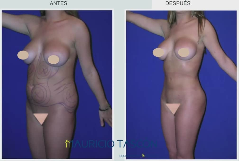 caso de liposuccion antes y despues
