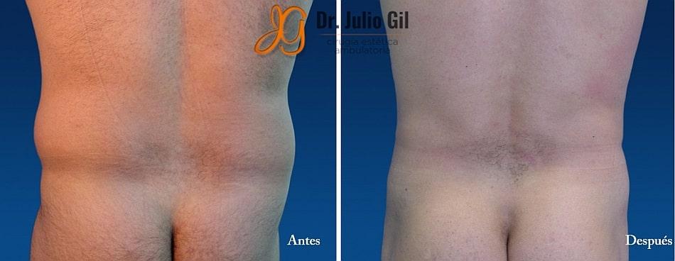 liposuccion en espalda en hombre