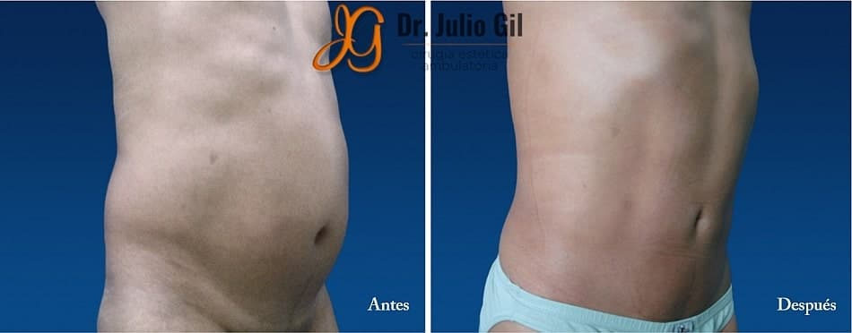 liposuccion masculina en estomago