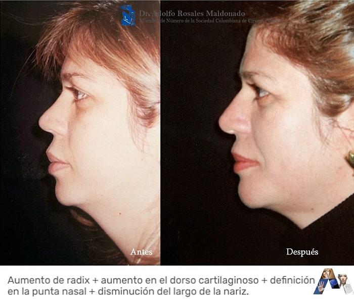 antes despues de segunda operacion de nariz