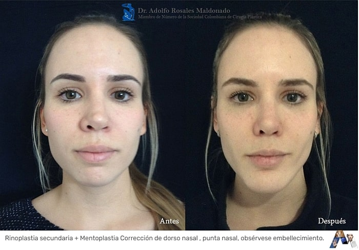 caso de cirugia de nariz por segunda vez en mujer joven