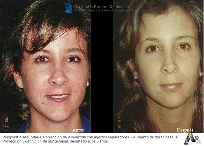 foto frontal de rinoplastia secundaria