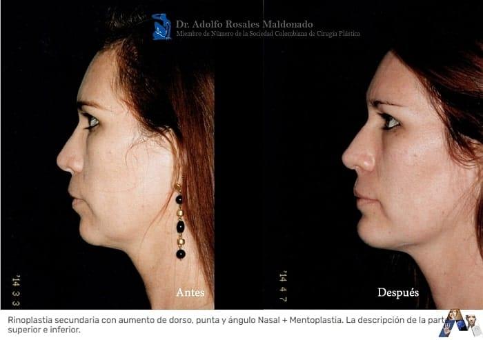 perfil de caso de segunda rinoplastia