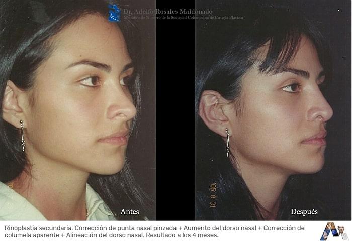 foto perfil de cirugia de nariz en mujer